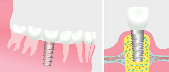Dental Implants at Douglas Dentistry