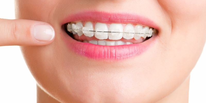 Invisalign vs. Braces at Douglas Dentistry | Dentist in Tampa